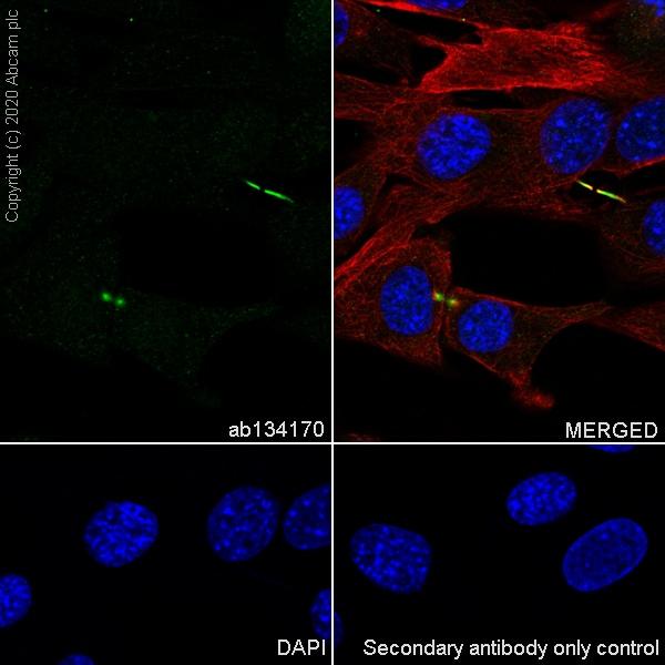 Immunocytochemistry - Anti-Survivin antibody [EPR2675] (ab134170)