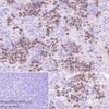 Immunohistochemistry (Formalin/PFA-fixed paraffin-embedded sections) - Anti-Survivin antibody [EPR2675] (ab134170)