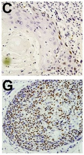 Immunohistochemistry (Formalin/PFA-fixed paraffin-embedded sections) - Anti-Cyclin D1 antibody [EPR2241] - C-terminal (ab134175)