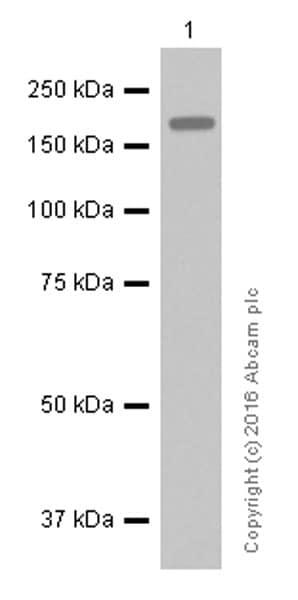 Western blot - Anti-ErbB2 / HER2 antibody [EP1045Y] (ab134182)