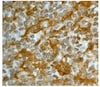 Immunohistochemistry (Formalin/PFA-fixed paraffin-embedded sections) - Anti-Gelsolin antibody [EP1940Y] (ab134183)