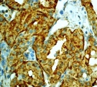 Immunohistochemistry (Formalin/PFA-fixed paraffin-embedded sections) - Anti-Lactate Dehydrogenase antibody [EP1563Y] (ab134187)