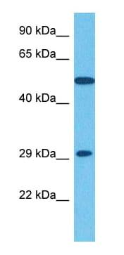 Western blot - Anti-CEMP1 antibody (ab134231)