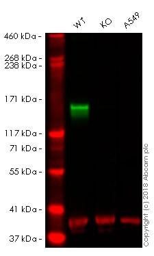 Western blot - Anti-Neurofilament antibody [RNF406] (ab134306)