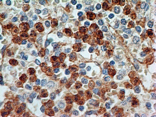 Immunohistochemistry (Formalin/PFA-fixed paraffin-embedded sections) - Anti-TLR9 antibody [26C593.2] (ab134368)