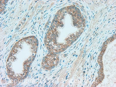 Immunohistochemistry (Formalin/PFA-fixed paraffin-embedded sections) - Anti-Fas Ligand antibody (ab134401)