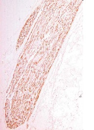 Immunohistochemistry (PFA perfusion fixed frozen sections) - Anti-Myelin Protein Zero antibody (ab134439)
