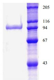 SDS-PAGE - Native human DPP4 protein (ab134443)