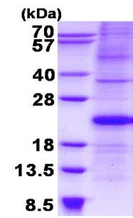 SDS-PAGE - Recombinant Human p21 protein (denatured) (ab134524)