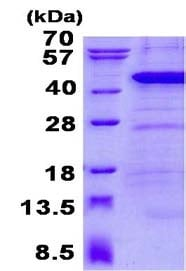 SDS-PAGE - Recombinant Human ANKRD1 protein (ab134543)