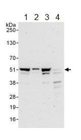 Western blot - Anti-p46 antibody (ab134556)