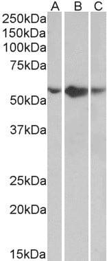 Western blot - Anti-TNF Receptor I antibody (ab134562)
