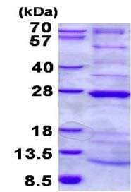 SDS-PAGE - Recombinant Human NDUFAF4 protein (ab134610)