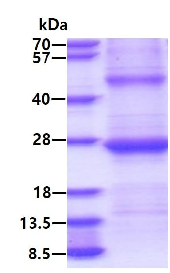 SDS-PAGE - Recombinant Human GILT protein (ab134622)