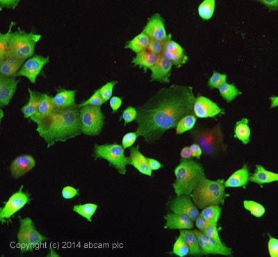 Immunocytochemistry/ Immunofluorescence - Anti-PI4 kinase beta/PI4KB antibody (ab134756)