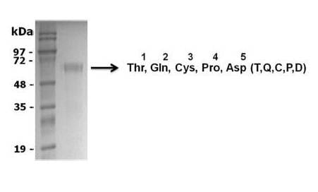 SDS-PAGE - Recombinant Rat Granulin protein (ab134859)