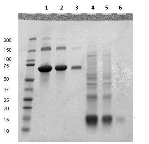 SDS-PAGE - Recombinant Human CD59 protein (ab134887)