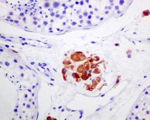 Immunohistochemistry (Formalin/PFA-fixed paraffin-embedded sections) - Anti-Cytochrome P450 17A1/CYP17A1 antibody [EPR6294(2)] (ab134910)
