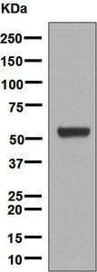Western blot - Anti-Cytochrome P450 17A1/CYP17A1 antibody [EPR6294(2)] (ab134910)