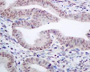 Immunohistochemistry (Formalin/PFA-fixed paraffin-embedded sections) - Anti-TAF15 antibody [EPR9197(B)] (ab134916)