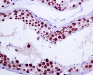Immunohistochemistry (Formalin/PFA-fixed paraffin-embedded sections) - Anti-Tat-SF1 antibody [EPR9105(B)] (ab134921)