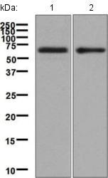 Western blot - Anti-IL-5RA antibody [EPR5450(2)] (ab134935)