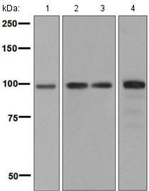 Western blot - Anti-STAT6 antibody [EPR1912] (ab134940)