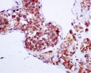 Immunohistochemistry (Formalin/PFA-fixed paraffin-embedded sections) - Anti-TMP21 antibody [EPR9036(B)] (ab134948)