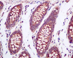 Immunohistochemistry (Formalin/PFA-fixed paraffin-embedded sections) - Anti-UQCRH antibody [EPR9039(B)] (ab134949)