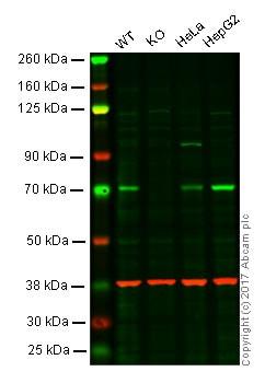 Western blot - Anti-ACBD3 antibody [EPR8623] (ab134952)