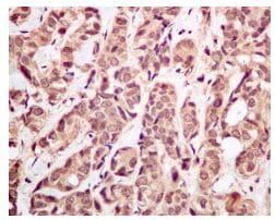 Immunohistochemistry (Formalin/PFA-fixed paraffin-embedded sections) - Anti-Ubiquitin antibody [EPR8830] (ab134953)