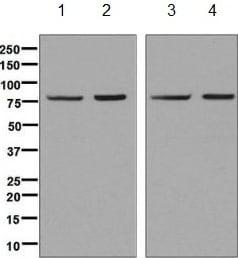 Western blot - Anti-Methylmalonyl Coenzyme A mutase antibody [EPR7738] (ab134956)