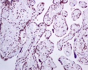 Immunohistochemistry (Formalin/PFA-fixed paraffin-embedded sections) - Anti-BRMS1 antibody [EPR7202] (ab134968)