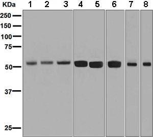 Western blot - Anti-ZPR1 antibody [EPR7595] (ab134970)
