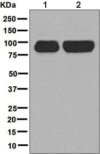 Western blot - Anti-AAK1 antibody [EPR5126(2)] (ab134971)