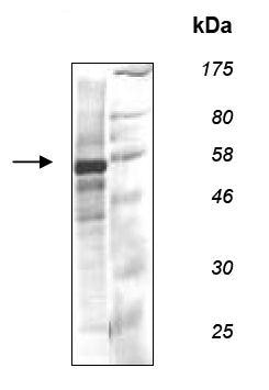 SDS-PAGE - Recombinant human Fyn protein (ab135007)
