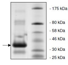 SDS-PAGE - Recombinant ADA protein (ab135018)