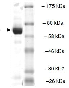 SDS-PAGE - Recombinant human TDP2 protein (ab135019)