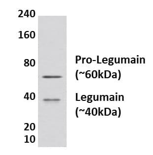 Western blot - Anti-Legumain antibody [MM0625-46I3] (ab135202)