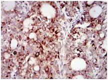Immunohistochemistry (Formalin/PFA-fixed paraffin-embedded sections) - Anti-PI 3 Kinase p85 alpha antibody [6G10] (ab135253)