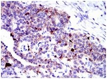 Immunohistochemistry (Formalin/PFA-fixed paraffin-embedded sections) - Anti-Annexin A1/ANXA1 antibody [2F1] (ab135256)