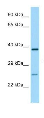 Western blot - Anti-P2Y14 antibody (ab135323)