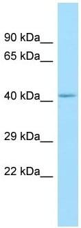 Western blot - Anti-GPCR GPR85 antibody - N-terminal (ab135332)