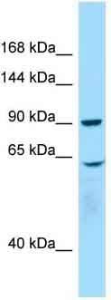 Western blot - Anti-WHAMM antibody - C-terminal (ab135414)