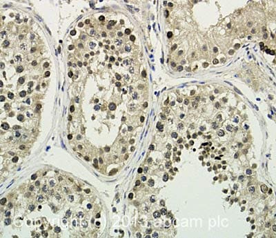 Immunohistochemistry (Formalin/PFA-fixed paraffin-embedded sections) - Anti-C12orf10 antibody - N-terminal (ab135433)