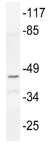 Western blot - Anti-Connexin 45/GJA7/Cx45 antibody (ab135474)