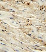 Immunohistochemistry (Formalin/PFA-fixed paraffin-embedded sections) - Anti-CD105 antibody (ab135528)