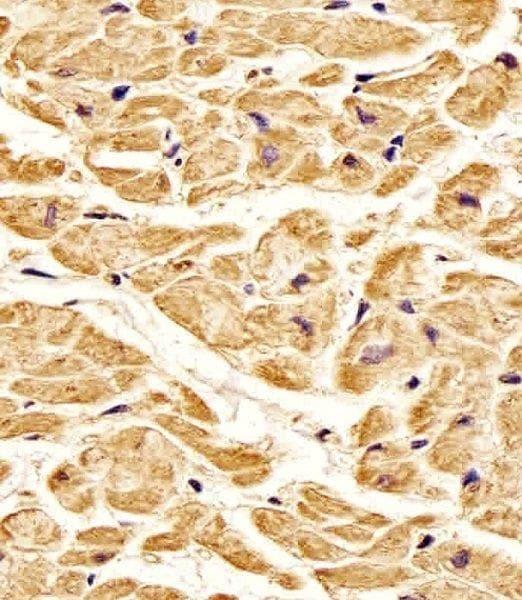 Immunohistochemistry (Formalin/PFA-fixed paraffin-embedded sections) - Anti-ROR1 antibody (ab135669)
