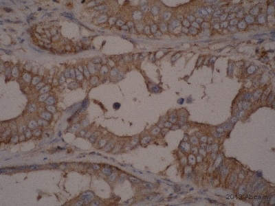 Immunohistochemistry (Formalin/PFA-fixed paraffin-embedded sections) - Anti-ENT1 antibody (ab135756)
