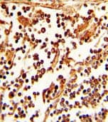 Immunohistochemistry (Formalin/PFA-fixed paraffin-embedded sections) - Anti-CD62L antibody - C-terminal (ab135792)